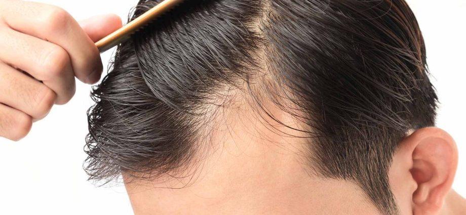 Signs and symptoms of hair loss